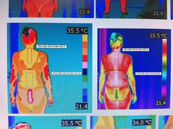 A termografia está relacionada com a inflamação e a dor crónica em pacientes com fibromialgia