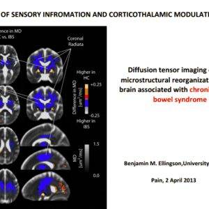 Os pacientes com cólon irritável apresentam alterações a nível cerebral